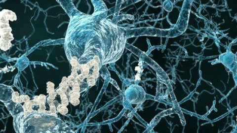 alzheimer-neurons-with-plaques.jpg