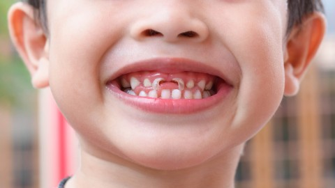 optimal fluoride level in drinking water to prevent tooth decay